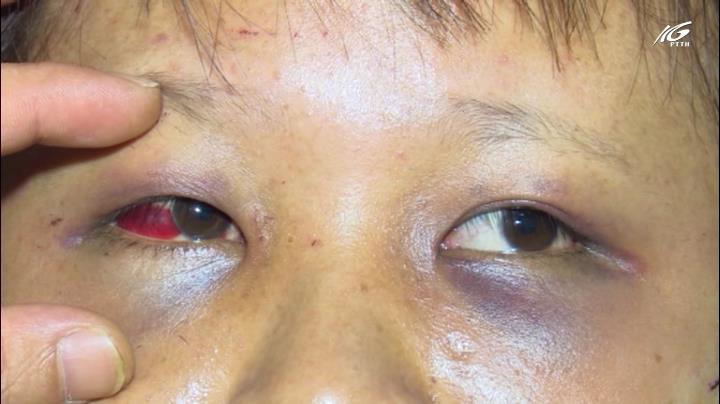 Thiếu nữ phục vụ quán karaoke bị tra tấn