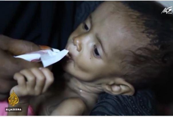 LHQ giải ngân 32 triệu USD cứu đói Yemen